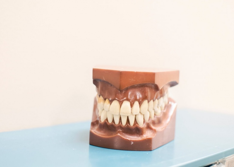¿Qué es la gingivitis? Síntomas, prevención y cómo combatirla