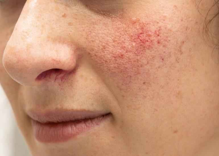 ¿Sufres rosácea? Descubre cómo tratarla adecuadamente